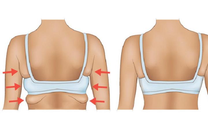 Hút mỡ nách an toàn, không đau - Công nghệ Body Fit